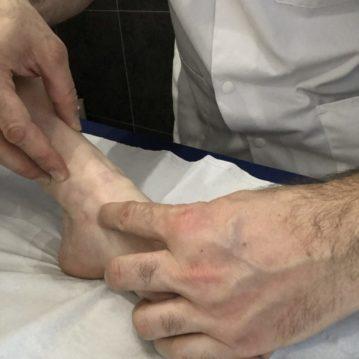 Ostéopathe, manipulation de la cheville
